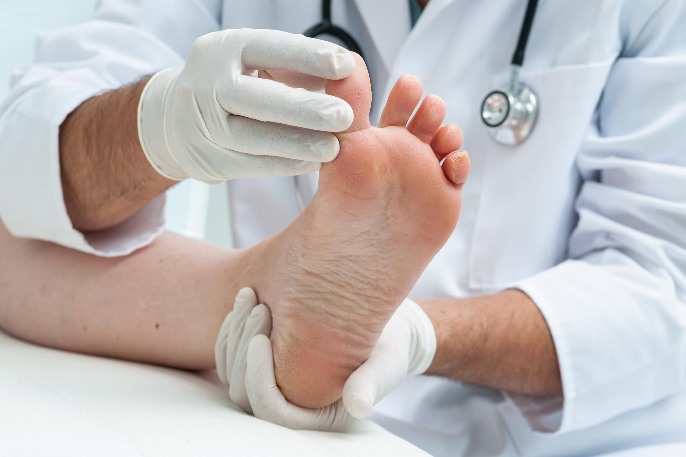 Preventing amputations